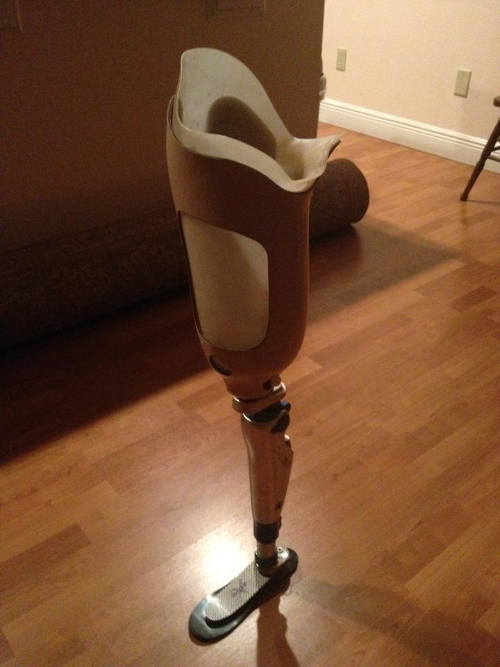 prostetic leg